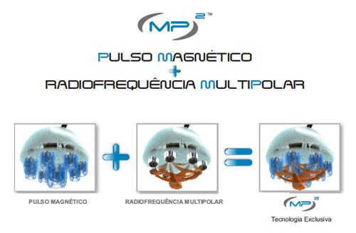 Funcionamento da MP2